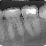 Dentalni radiogram na zubima donje vilice