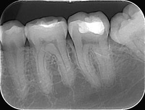 Dentalni Radiogram